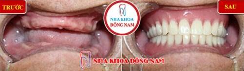 Nên làm răng giả tháo lắp hay cố định bằng Implant-2