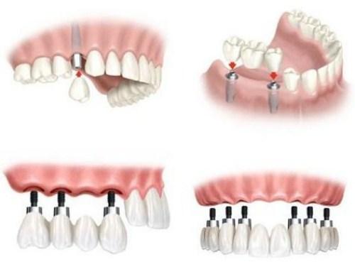 Nên làm răng giả tháo lắp hay cố định bằng Implant-4