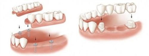 Nên làm răng giả tháo lắp hay cố định bằng Implant-7