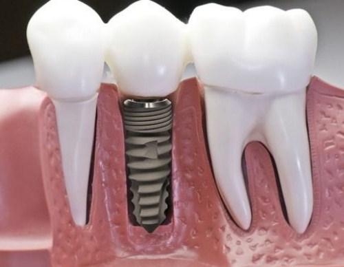 Nên làm răng giả tháo lắp hay cố định bằng Implant-8