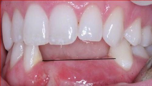 Nên làm răng giả tháo lắp hay cố định bằng Implant-9