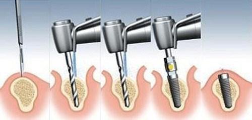 Trồng Răng Implant Giá Thấp Nhất Tại Nha Khoa Đông Nam_7
