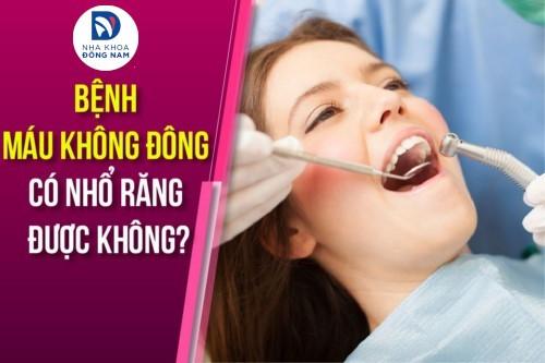 Bệnh Máu Không Đông Có Nhổ Răng Được Không