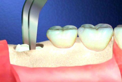 bệnh máu không đông có nhổ răng được không 2