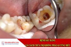 bệnh sâu răng và cách chữa trị không phải ai cũng biết