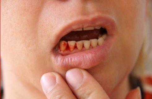 bị chảy máu răng là biểu hiện của bệnh gì 1