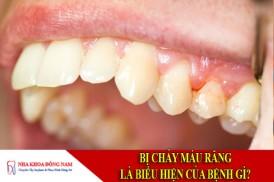 bị chảy máu răng là biểu hiện của bệnh gì?
