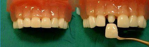 bị hô và răng mọc thừa phía trong thì có bọc sứ được không 2