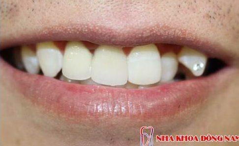 bị hô và răng mọc thừa phía trong thì có bọc sứ được không 3