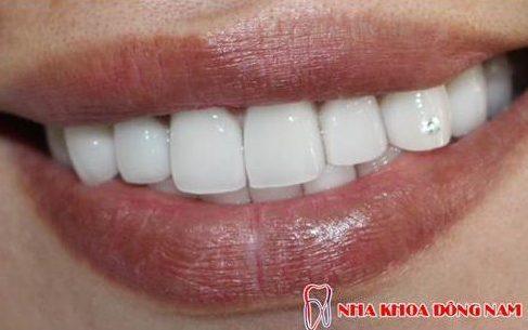 bị hô và răng mọc thừa phía trong thì có bọc sứ được không 4