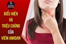 biểu hiện và triệu chứng của viêm amidan