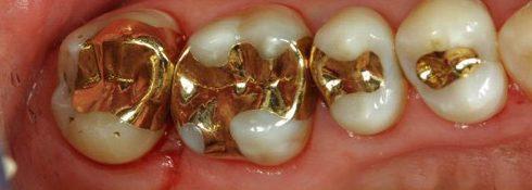 các loại vật liệu trám răng được sử dụng hiện nay 2