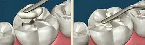 các loại vật liệu trám răng được sử dụng hiện nay 3