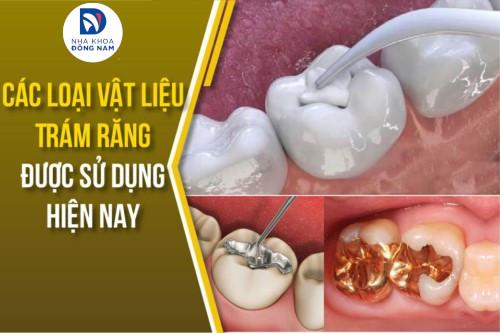 các loại vật liệu trám răng được sử dụng hiện nay