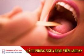 cách phòng ngừa bệnh viêm amidan