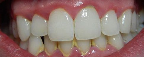cạo vôi răng khi mang thai có tốt không 1