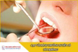 cạo vôi răng thường xuyên có tốt không
