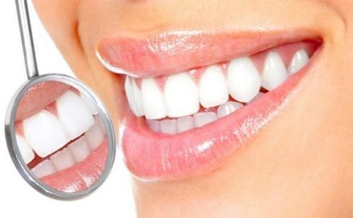 cạo vôi răng thường xuyên có tốt không 1