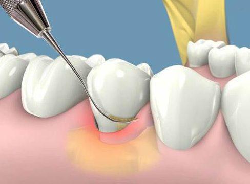 cạo vôi răng thường xuyên có tốt không 2