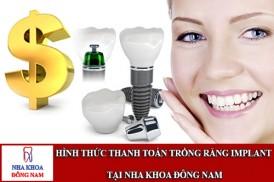hình thức thanh toán trồng răng implant tại nha khoa đông nam
