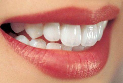 công nghệ niềng răng bên mặt trong của răng 2