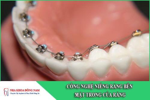 công nghệ niềng răng bên mặt trong của răng