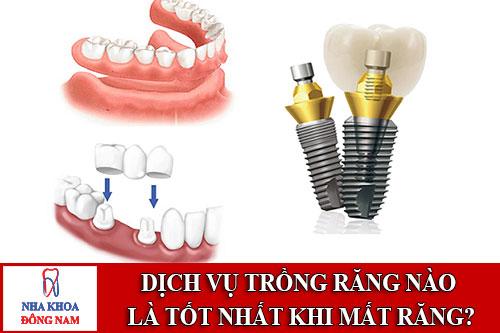 dịch vụ trồng răng nào là tốt nhất khi mất răng?