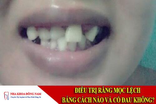 điều trị răng mọc lệch bằng cách nào và có đau không