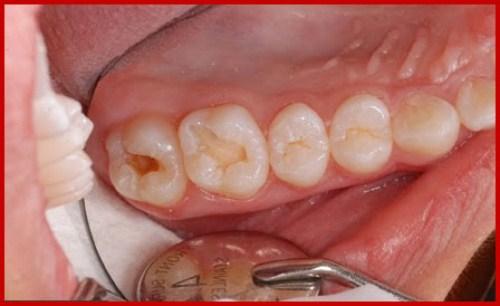 điều trị nhức răng ở bà bầu