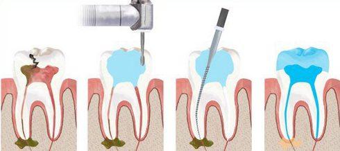 Điều trị tủy răng có đau không 1
