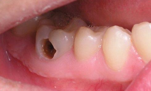 Điều trị tủy răng có đau không 2