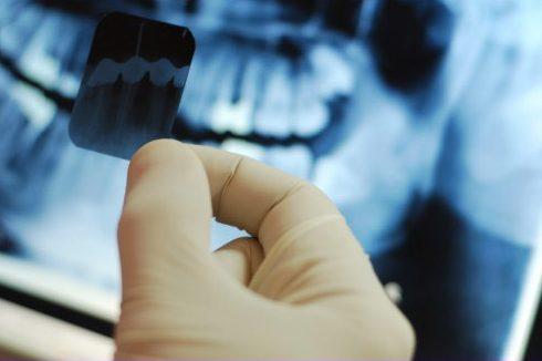 điều trị tủy răng khi mang thai có được không 2