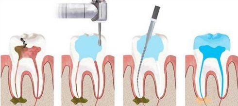 thời gian điều trị tủy răng mất bao lâu 1