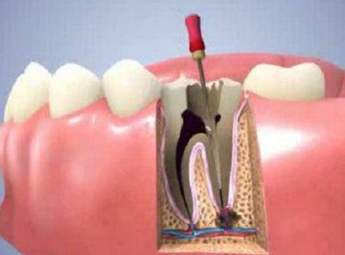 thời gian điều trị tủy răng mất bao lâu 2