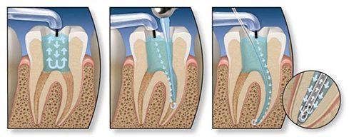 thời gian điều trị tủy răng mất bao lâu 3