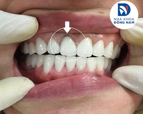 Hiện tượng đen viền nướu răng tại nha khoa đông nam