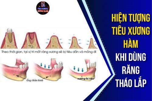 hiện tượng tiêu xương hàm khi dùng răng tháo lắp