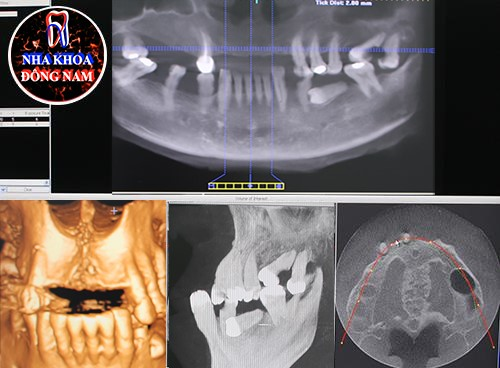 Hiện tượng tiêu xương hàm khi dùng hàm tháo lắp 2