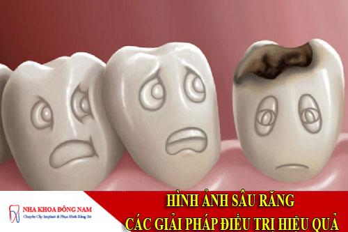 hình ảnh sâu răng & các giải pháp điều trị hiệu quả