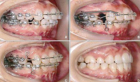 khi nào phẫu thuật răng hô, khi nào niềng răng 1