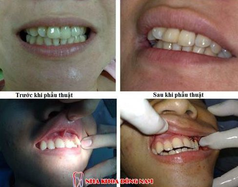 khi nào phẫu thuật răng hô, khi nào niềng răng 4