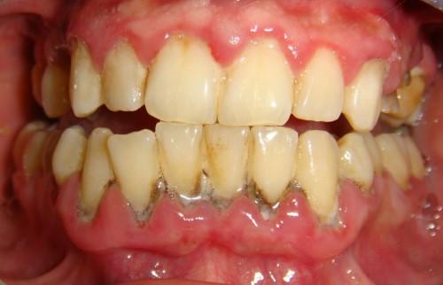 đau nhức răng do viêm nướu