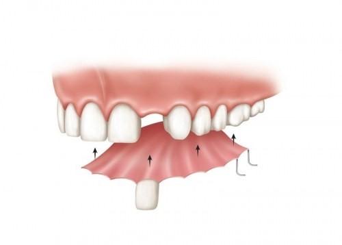 mất 1 răng có làm răng giả tháo lắp được không