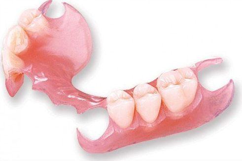 mất 1 răng có làm răng giả tháo lắp được không 2