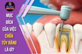 mục dích của việc chua tủy răng là gì
