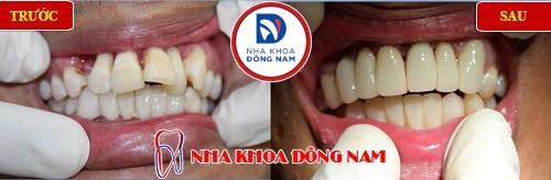 bọc sứ cho răng cửa bị đưa ra ngoài