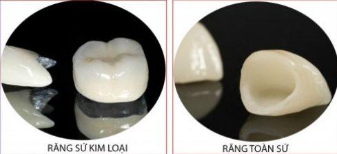 nên chọn loại răng sứ nào tốt 1