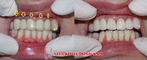 [tư vấn] nên chọn loại răng sứ nào tốt 4