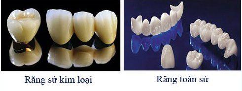 [tư vấn] nên chọn loại răng sứ nào tốt 5