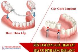 nên làm răng giả tháo lắp hay cố định bằng implant